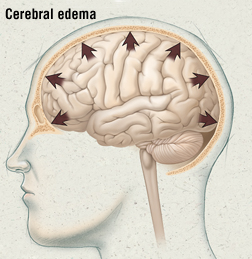 High Altitude Cerebral Edema